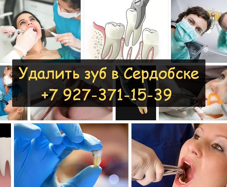 Удаление зубов: быстро и без боли - Сердобск официальный сайт