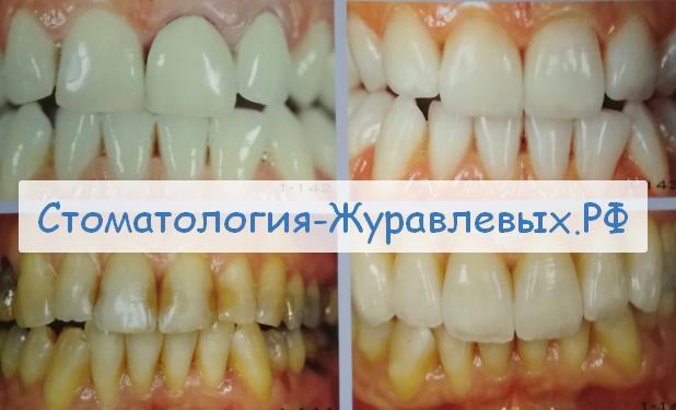 лечение кариеса Сердобск до 2027