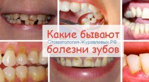 гигиена рот советы по уходу сердобск