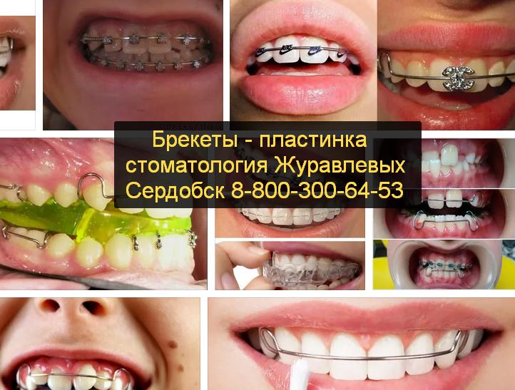 Брекеты цена Сердобск официальный сайт