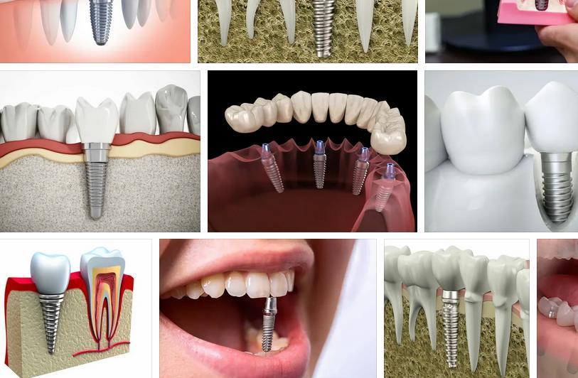 импланты зубов Сердобск