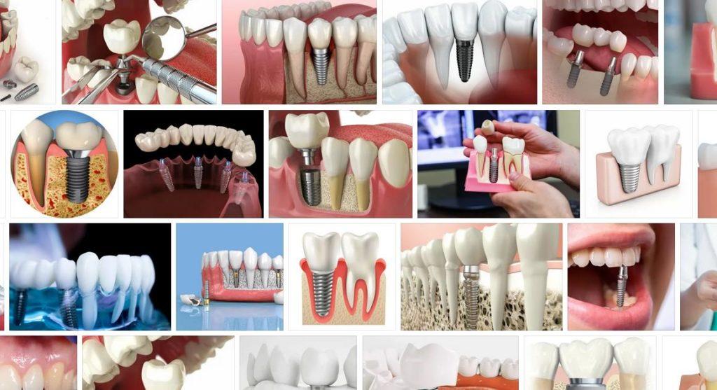 импланты зубов телефон в Сердобске