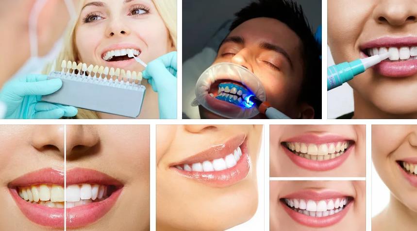 отбеливание зубова Сердобск